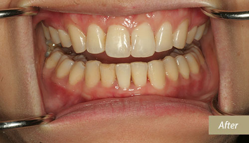 Invisalign after 4