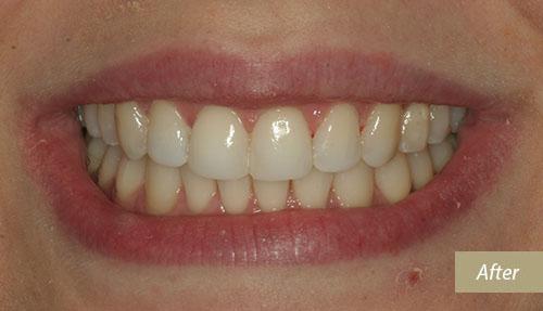 Teeth whitening & bonding after 1