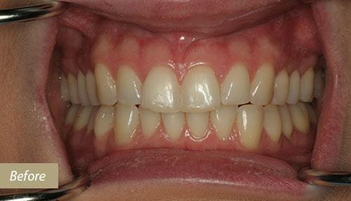 Teeth whitening & bonding before 1